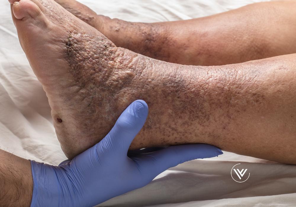 Skin discoloration, hyperpigmentation, venous stasis dermatitis, lipodermatosclerosis, atrophie blanche, inflammation, venous