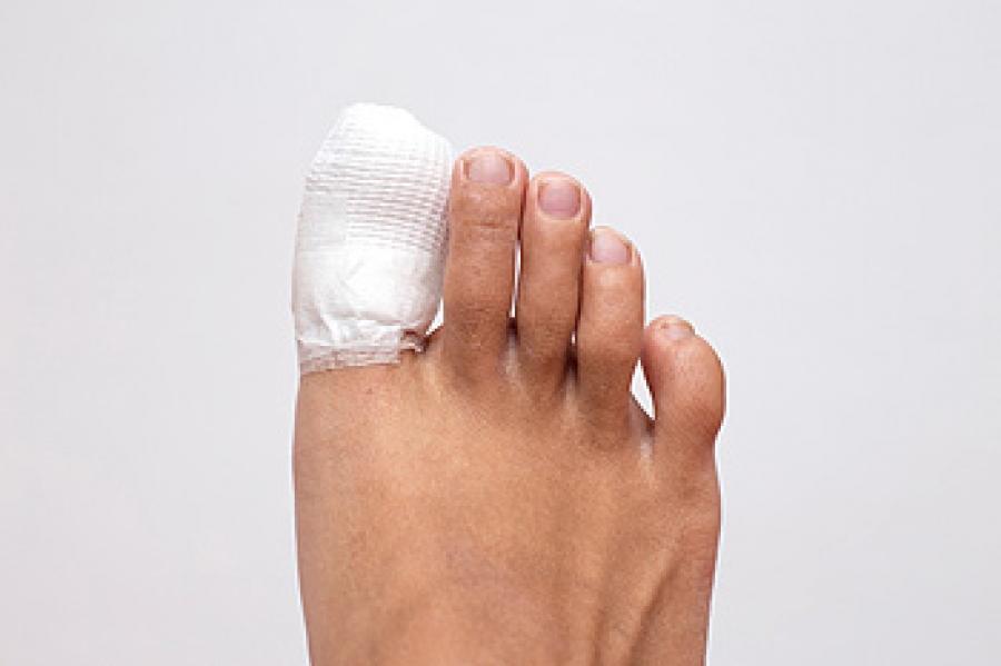 Is my toe broken?