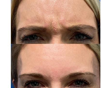 Gallery image about Gallery - Botox
