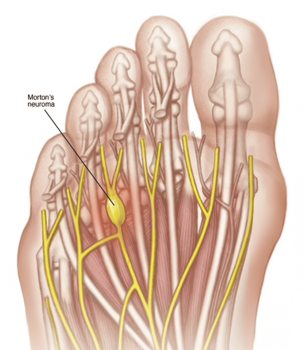 Morton's Neuroma and foot pain
