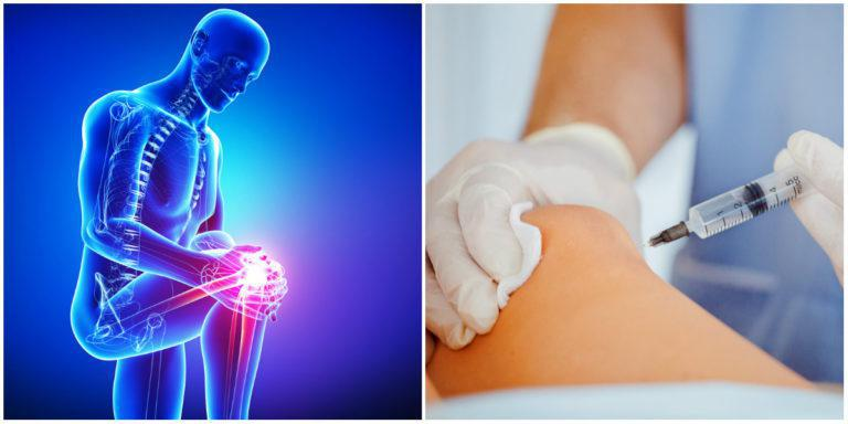 Stem Cell Therapy for Knee Pain