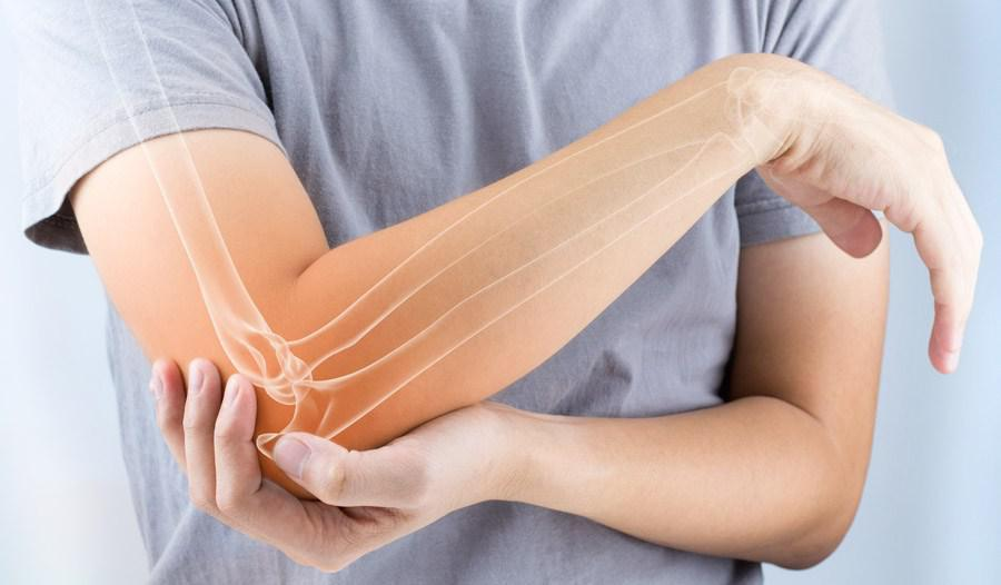 Platelet-Rich Plasma (PRP) Treatment for Chronic Tennis Elbow