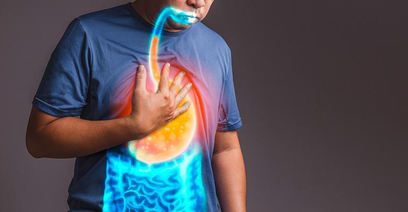 Preventing Heartburn After Bariatric Surgery