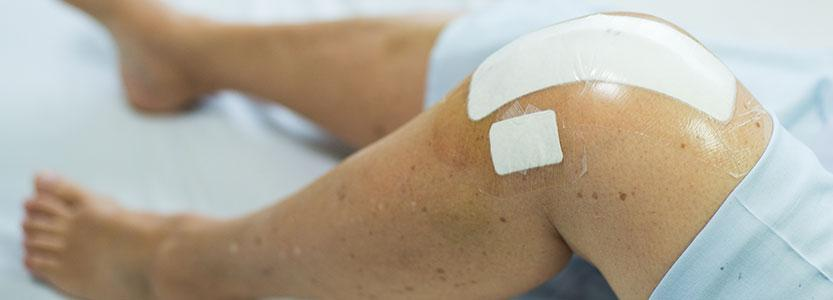 Caring for your incision post hip or knee surgery with Dr. Karas
