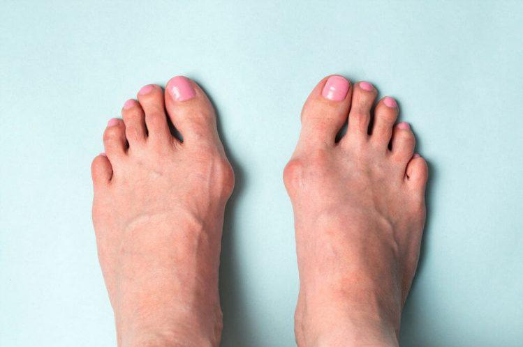 Early stage bunion