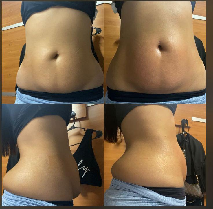 Gallery image about Body Contouring Before & After
