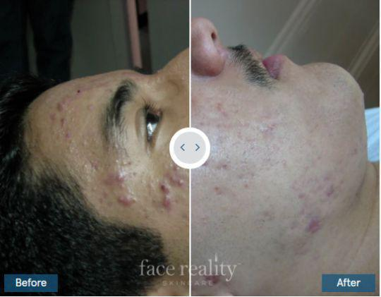 Gallery image about face reality before and after