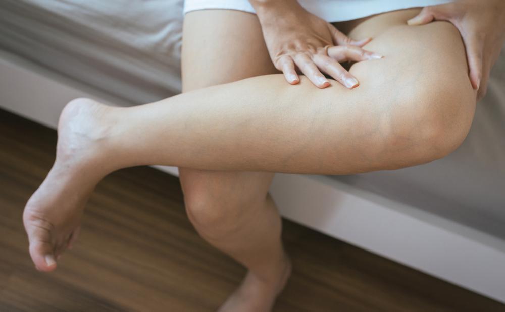 Leg Pain and Poor Blood Circulation