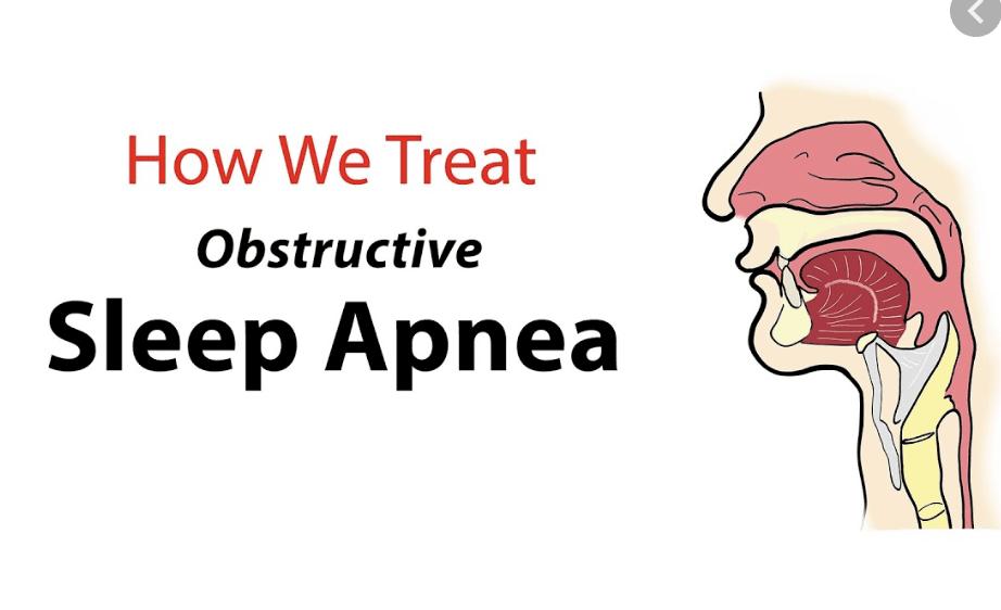Treatment Options for Obstructive Sleep Apnea (OSA)