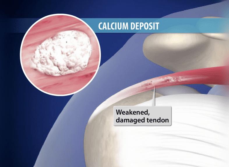Calcific Tendinitis: A Painful Shoulder Condition