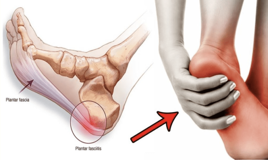 Plantar Fasciitis: Foot Pain