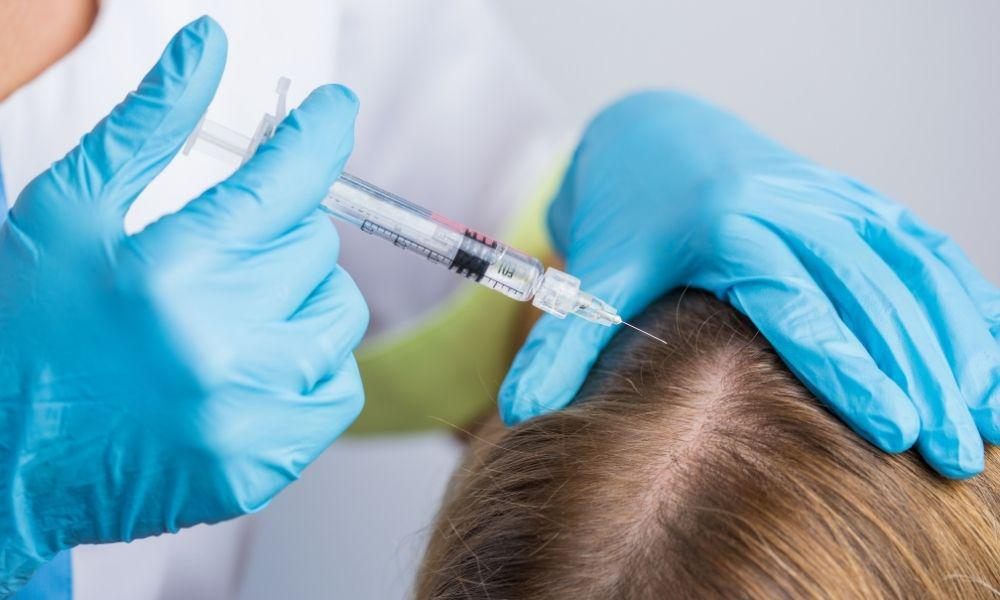 Patient receives Platelet Rich Plasma Treatment for thinning hair