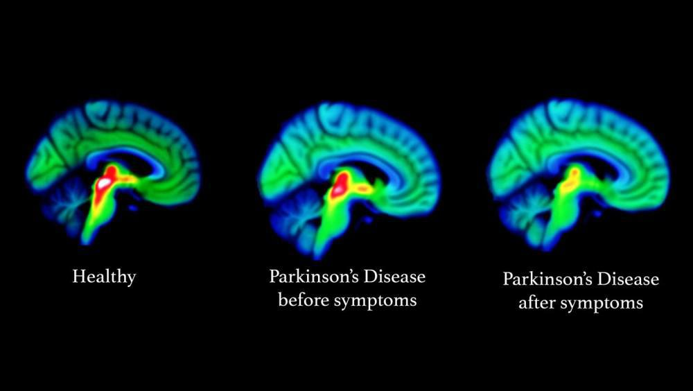 Brain imaging showing loss in serotonin function as Parkinson's disease progresses. Red/yellow areas show that serotonin func