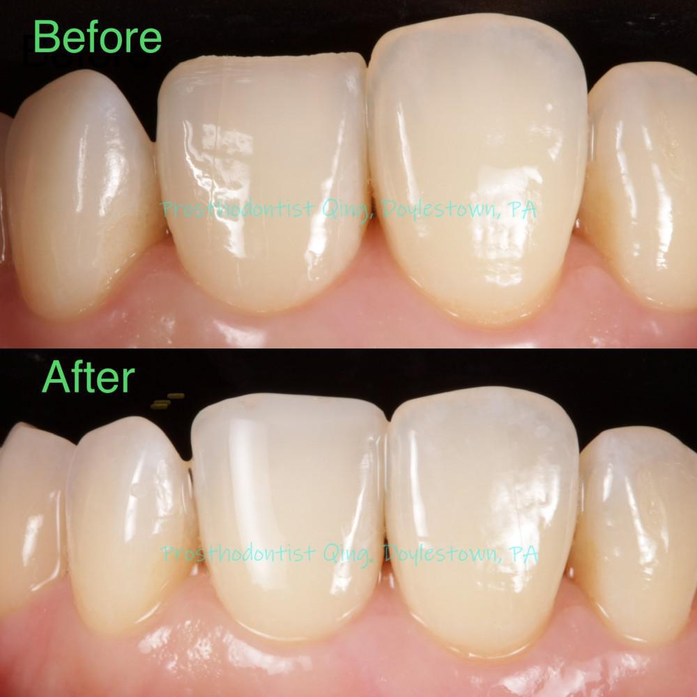 Cosmetic tooth filling composite layering technqiue