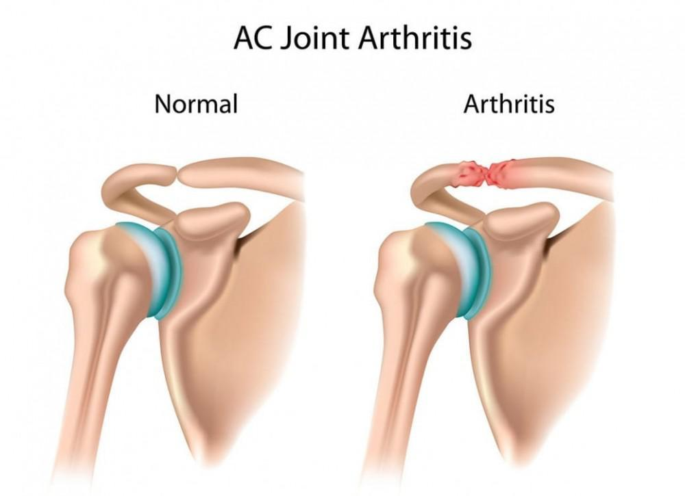 The AC joint (Acrocmioclavicular joint) can be very painful.