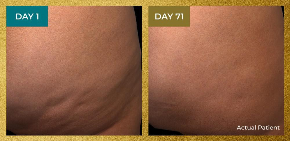 Before and after QWO for cellulite