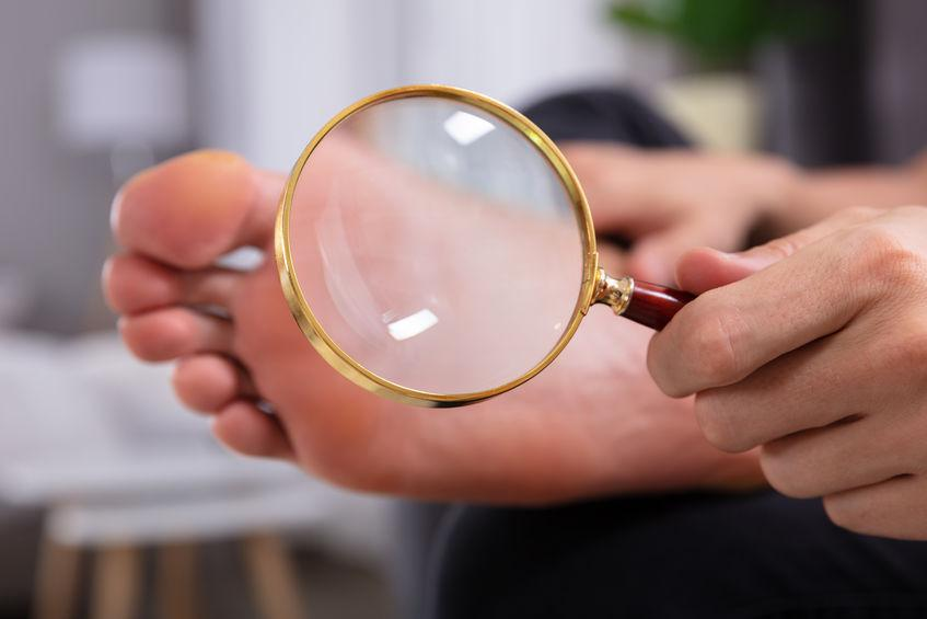 hand holding magnifying glass over bottom of foot