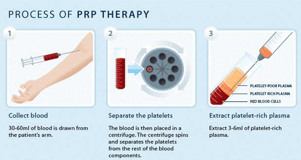 How PRP works.