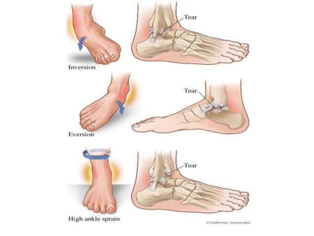 High vs Low Ankle Sprains