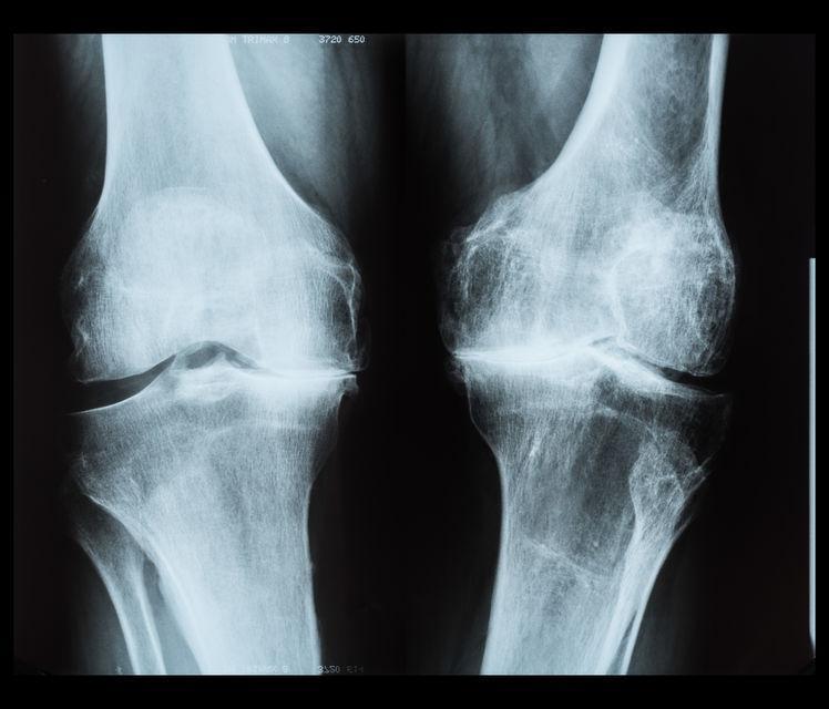 Bone-on-bone Knee Joints