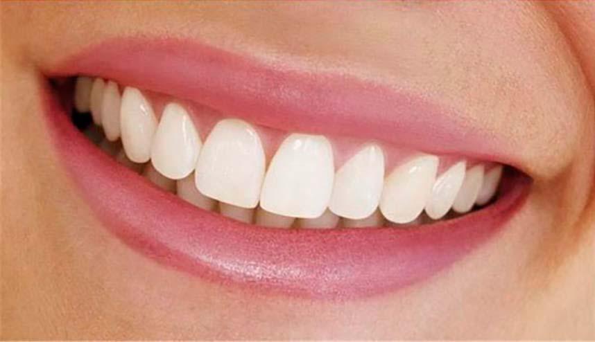 Natural Looking Dentures