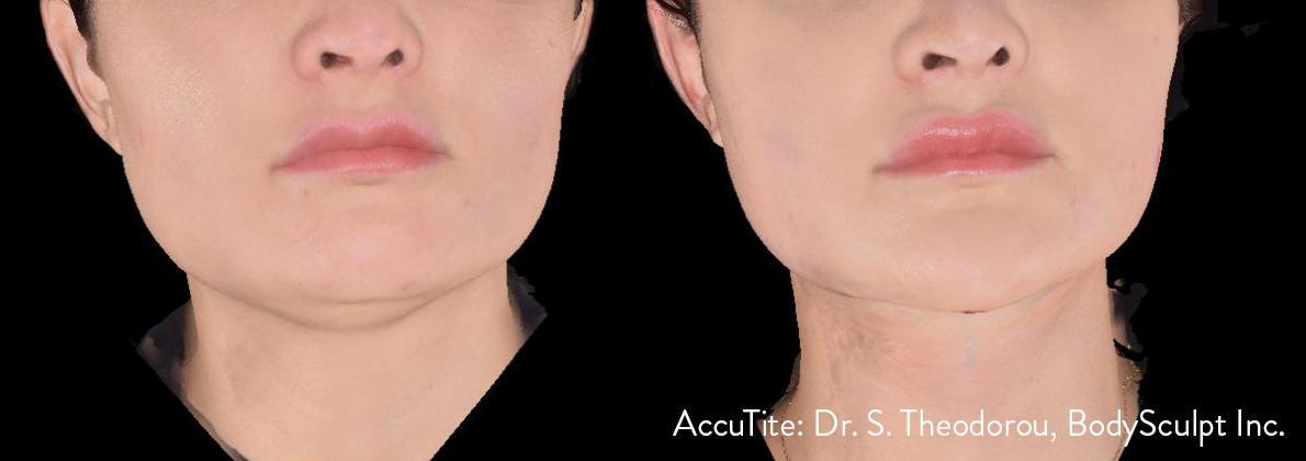 Gallery image about accutite