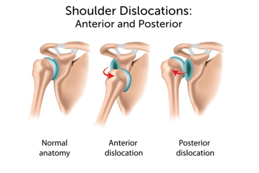 Posterior Shoulder Dislocations are less common than Anterior Shoulder Dislocations