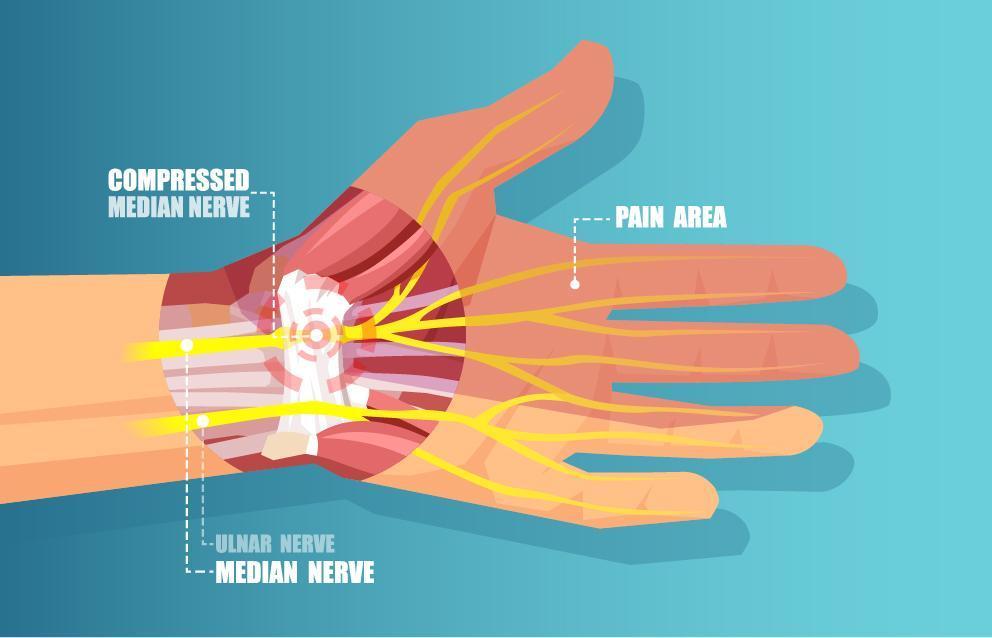 Carpal Tunnel Syndrome Illustration