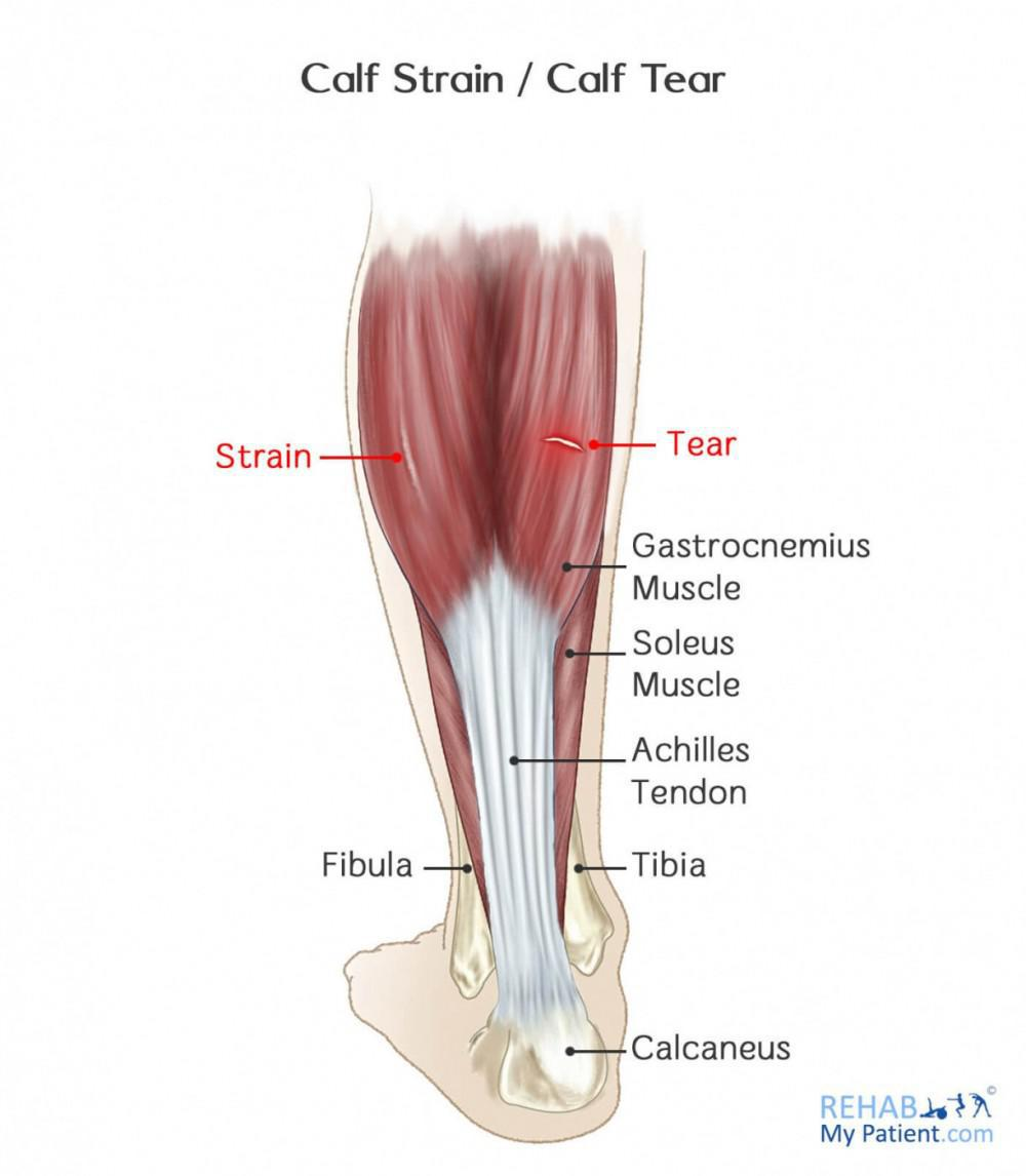 Calf Strains: Anatomy
