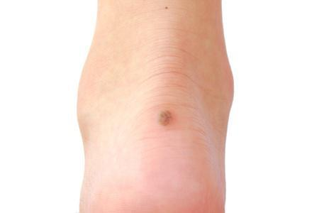 a mole on the back of a foot, at top of the heel