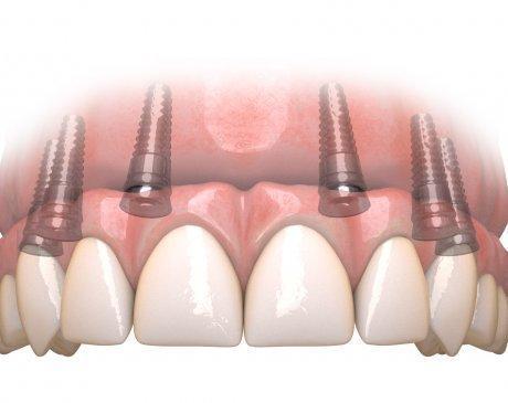 Hybridge teeth