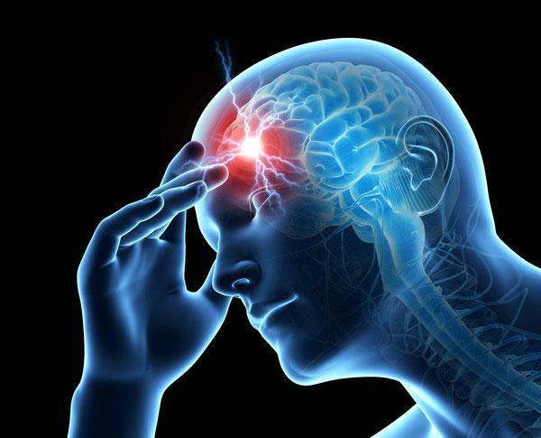 Migraine animated