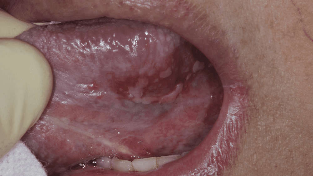Oral Manifestations of Covid 19