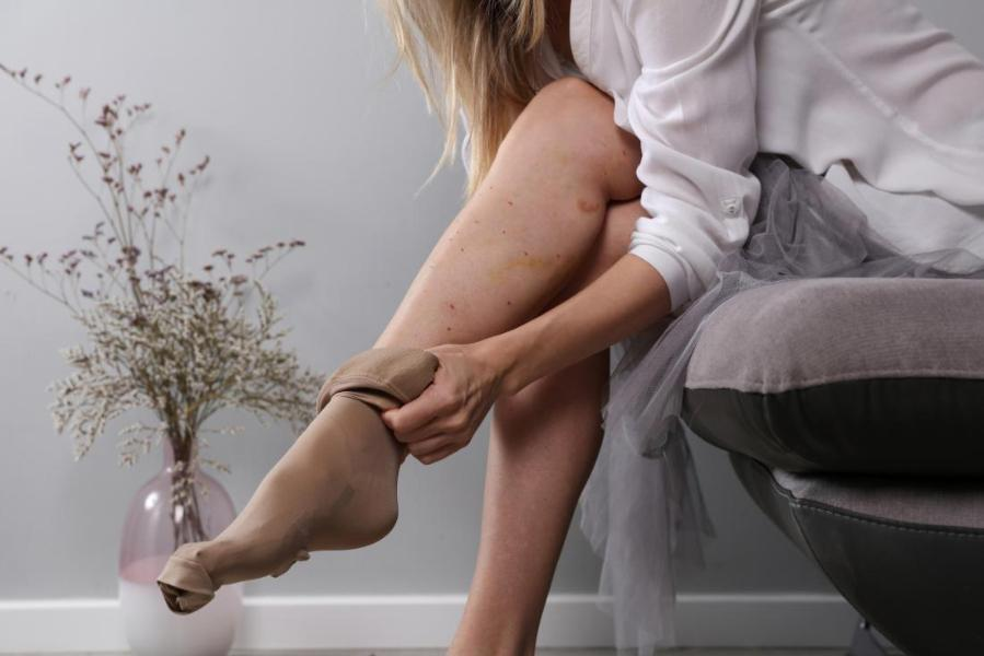 A lady crossing her legs as she puts on compression stockings