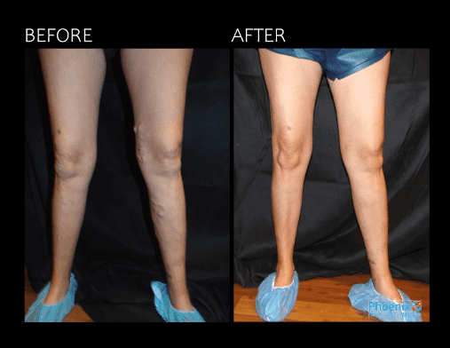 Gallery image about Before & After Vein Center Treatment