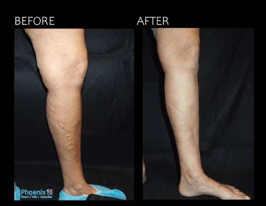 Gallery image about Vein Before and After