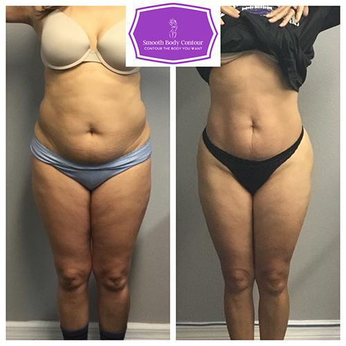 Gallery image about Aqualyx Results