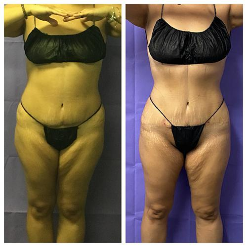 Gallery image about Art Lipo