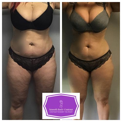 Gallery image about Laser Lipo