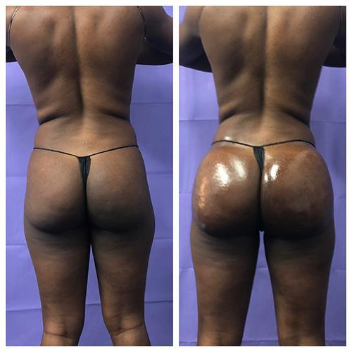 Gallery image about Sculptra BBL