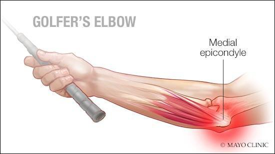 Medial Epicondylitis is a common cause of inner elbow pain.