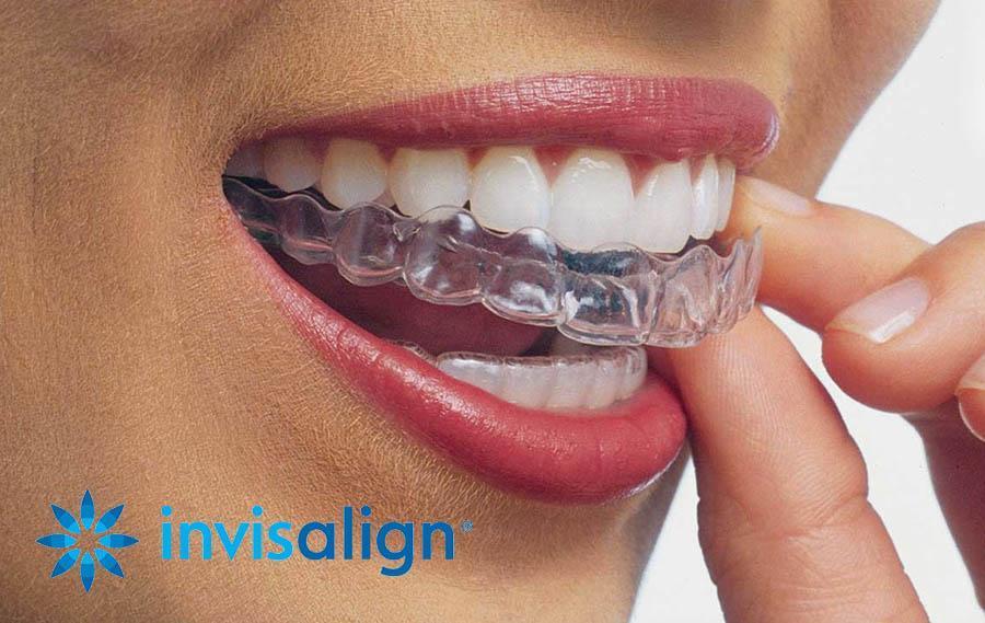 Invisalign for better smile and better health