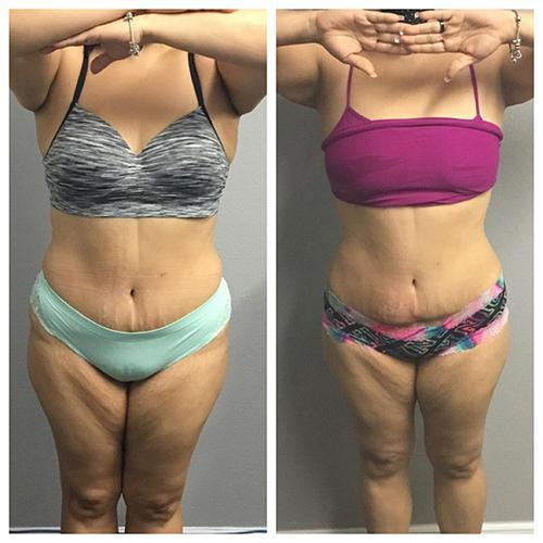 Gallery image about Fat Freezing