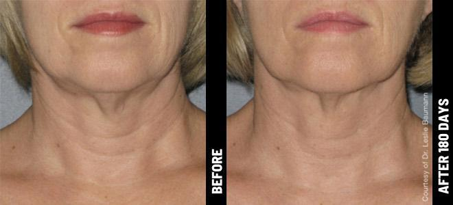 Before and After of Ultherapy to the Neck