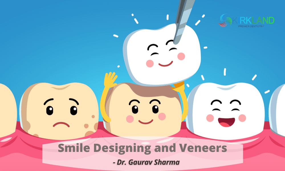 Smile Designing and Veneers