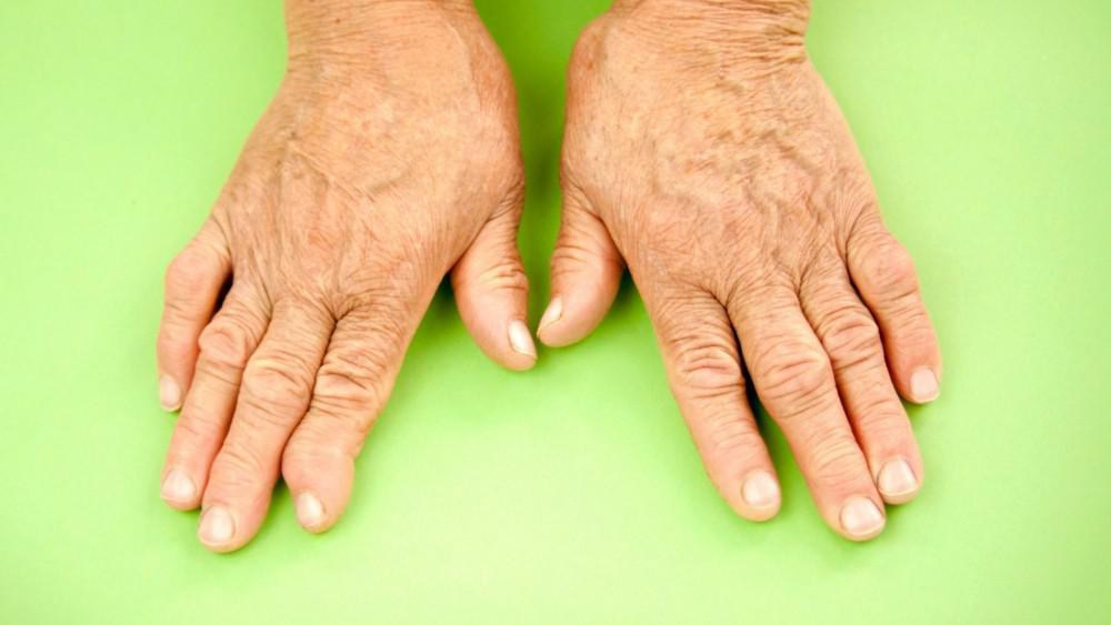 Physical Therapy can help with Arthritis