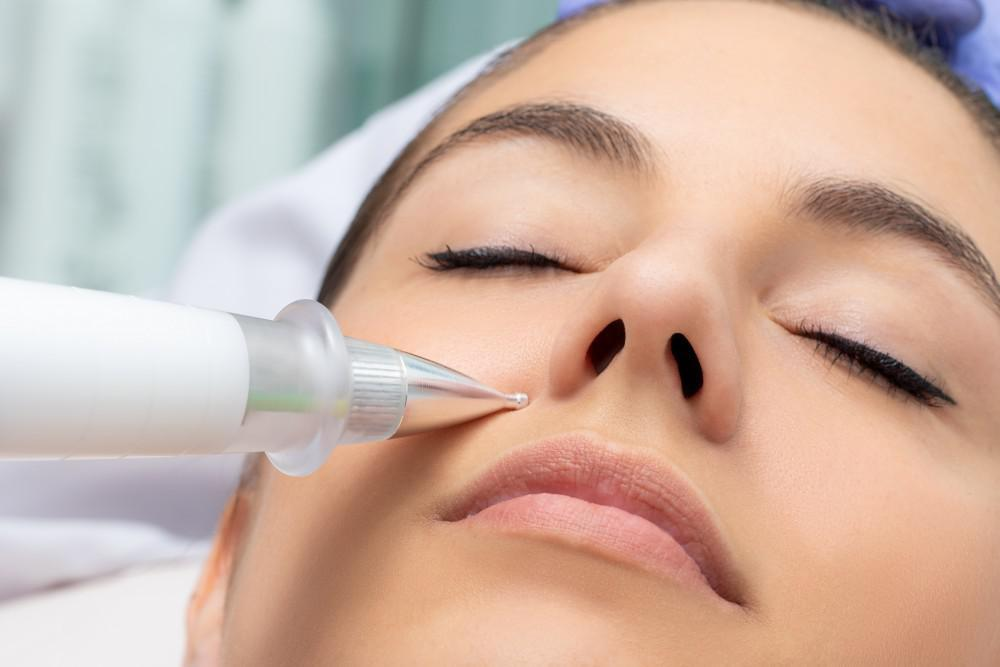 A patient receives a plasma fibroblast therapy treatment to tighten up her nasolabial folds.
