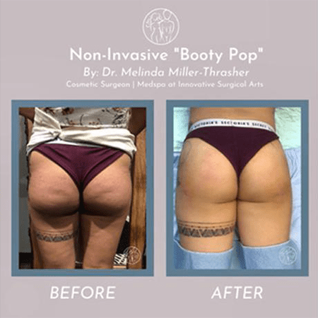 Gallery image about BBL (Booty Pop)