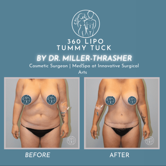 Gallery image about 360 lipo and tummy
