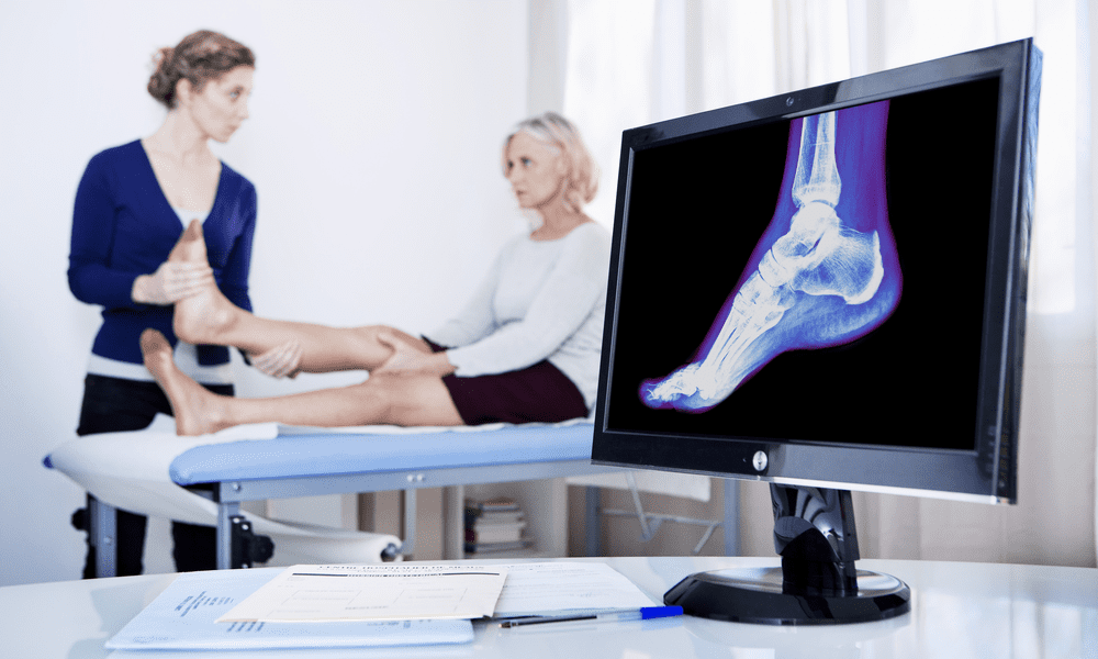 Doctor looking at an X-Ray of the foot